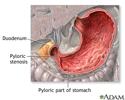Pyloric stenosis - infant | UF Health, University of Florida Health