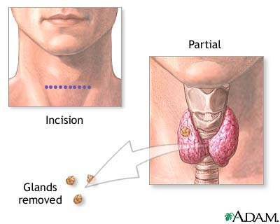 Parathyroid Gland Removal Uf Health University Of