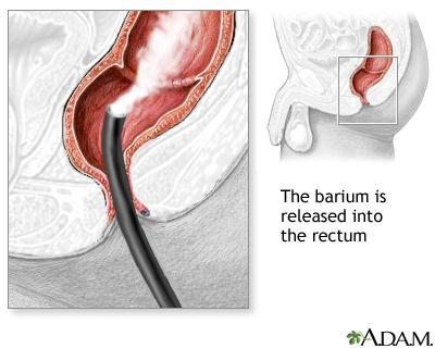 Barium Enema Uf Health University Of Florida Health