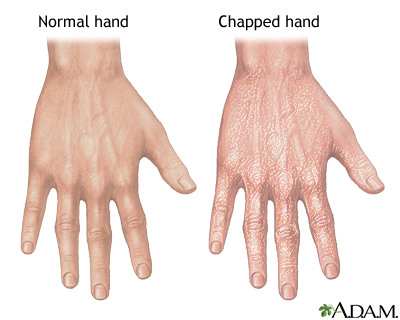 Cold Urticaria Hands Chapped hands   UF Hea...