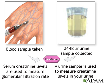 Creatinine blood test procedure