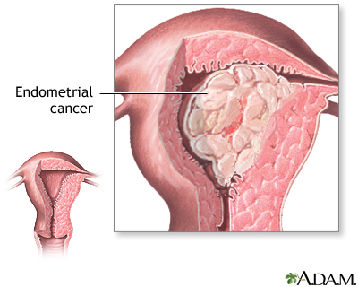 Uterine cancer what is it. Account Options, Endometrial cancer pregnancy