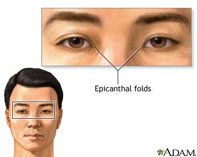 Epicanthal folds | UF Health, University of Florida Health