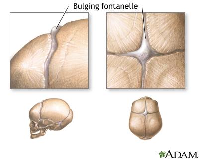 fontanelles - bulging   uf health, university of florida health, Cephalic Vein