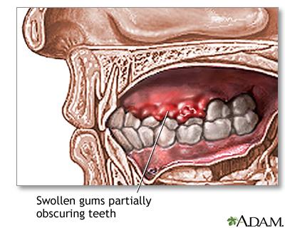 Gums Swollen Uf Health University Of Florida Health