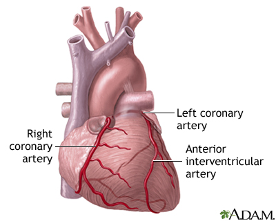 Heart bypass surgery | UF Health, University of Florida Health