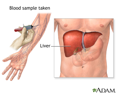 Liver function tests | UF Health, University of Florida Health