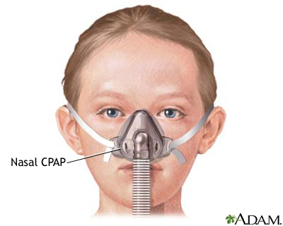 how to get rid of a cpap machine
