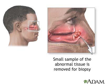 cavidad nasal yahoo dating