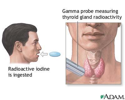 Radioactive Iodine Uptake Uf Health University Of