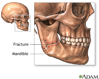 Broken or dislocated jaw | UF Health, University of Florida Health
