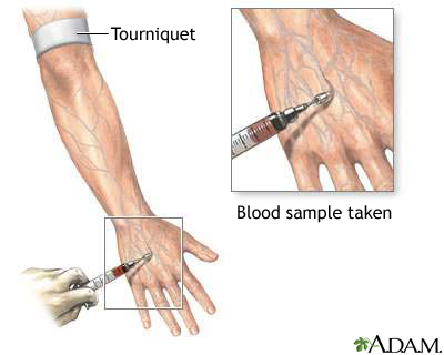 Chromium Blood Test Uf Health University Of Florida