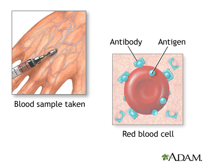 A blood test for herpes is available only in a few research centres 2
