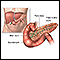 Pancreatitis - series
