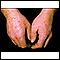 Erythema multiforme on the hands