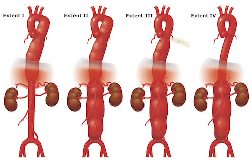 Examples of Type 1-4 Aneurysms
