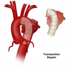 Aortic Transection Repair