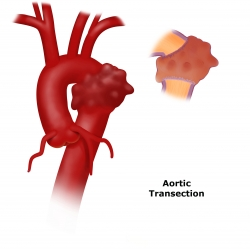 Traumatic Aortic Injury Transection Uf Health Aortic