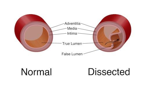 Dissection tear