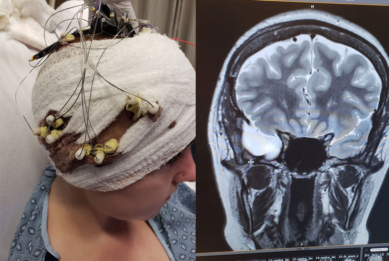 Left: As part of her evaluation, depth electrodes were placed in various parts of Brooklynn's brain. Right: The SEEG pinpointed the seizure focus that led to the temporal lobe being removed to cure her epilepsy.