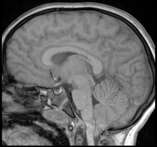 x Ray of brain with Chiari 1