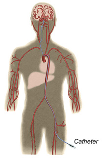 endovascular catheter