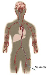 endovascular catheter