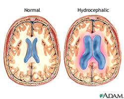 normal brain vs hydrocephalic brain