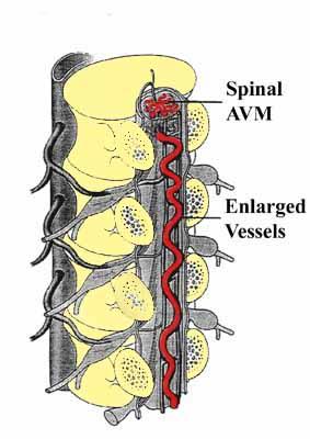 Spinal AVM
