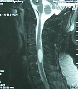 MRI of a spinal cord tumor