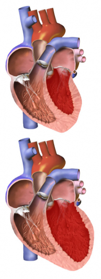 Congestive heart failure can lead to a dangerous condition in which the heart becomes enlarged. In this graphic, the heart on the bottom has an enlarged ventricle. A normal heart is seen above. (Image from Blausen Medical Communications via Wikimedia Commons)