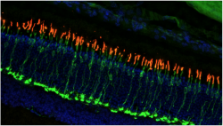 This image of a mouse retina shows the location and number of cone photoreceptors.  The green color indicates the presence of cone cell bodies and synaptic terminals, while the red color shows light-sensitive cone outer segments.