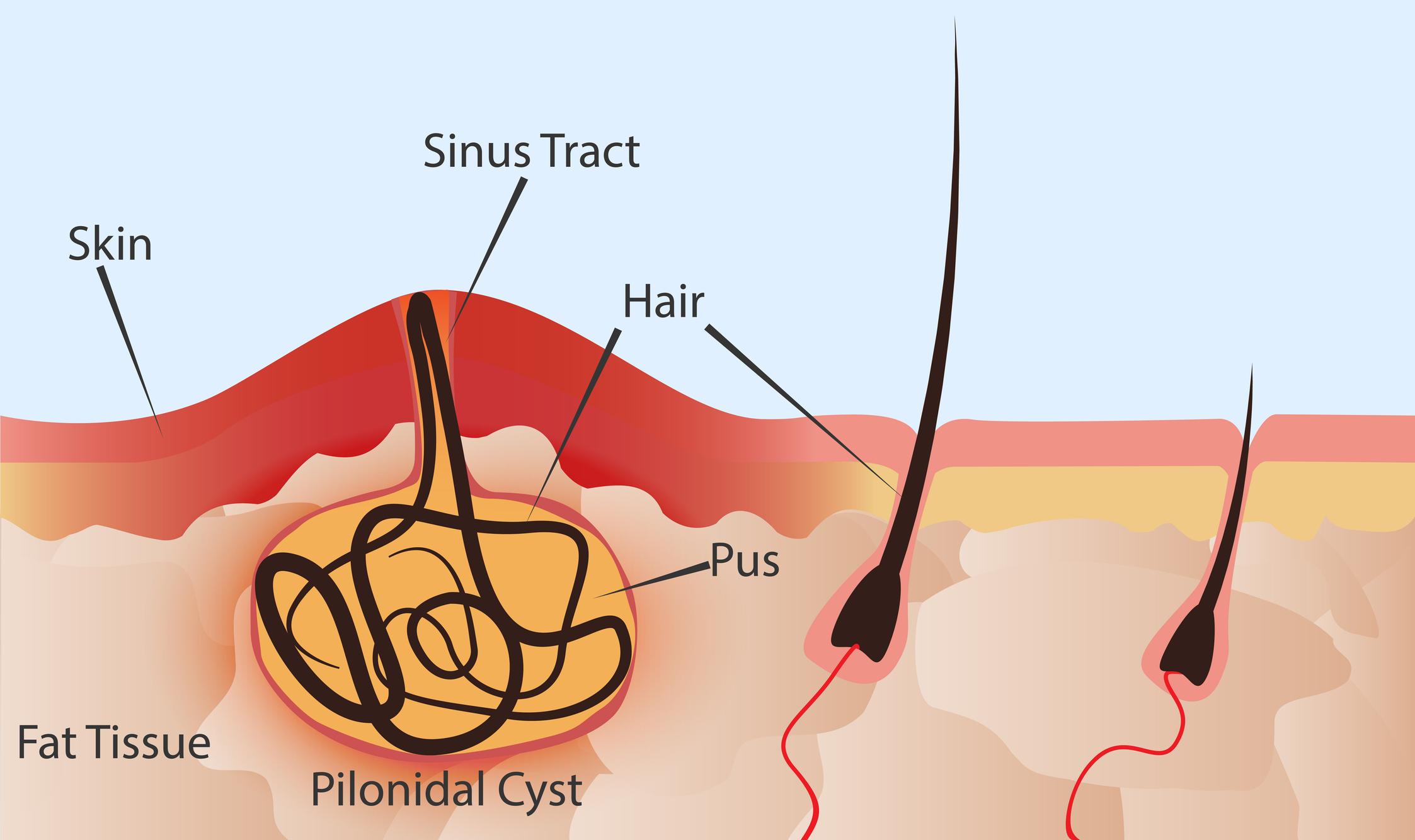 Pilonidal cyst diagram