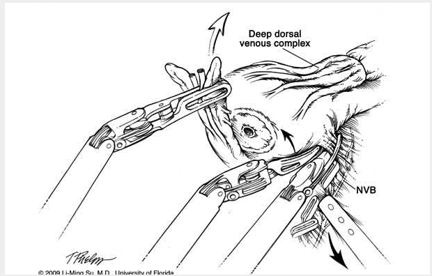 Robotic Nerve Sparing Radical Prostatectomy