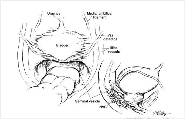 Robotic Nerve Sparing Radical Prostatectomy Uf Health