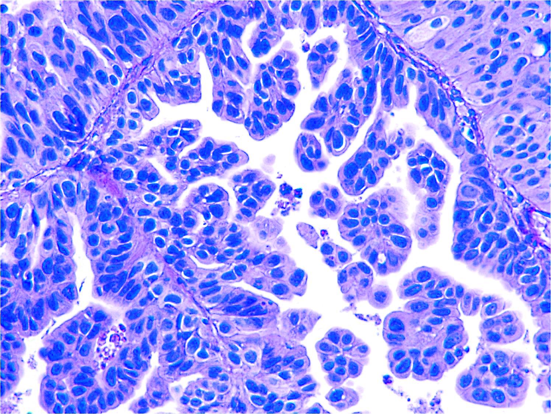 Bladder cancer cells