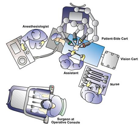 Figure 4. Operating room configuration for left robotic pyeloplasty (courtesy of Intuitive Surgical Inc, Sunnyvale, CA).