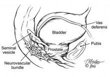 robotic prostatectomy clip image010