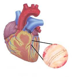 Coronary Artery Radiotherapy