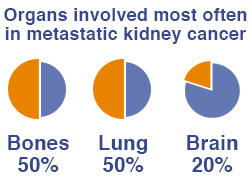 Organs involved most often in metastatic kidney cancer - bones, lung, brain