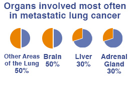 Organs involved most often in metastatic lung cancer - other areas of the lung,brain,liver,adrenal gland