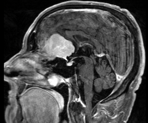 CAT scan of meningioma