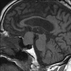 MRI of pituitary region