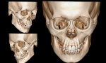 Profile, three-quarter and front-facing image collage of a 3d modeled skull