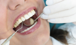 A dentist examine's a woman's mouth using a small mirror and dental pick