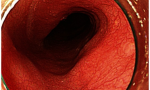 On esophagogastroduodenoscopy after endoscopic submucosal dissection, there is no evidence of recurrence or metastasis.