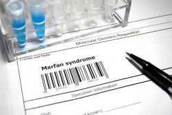 Marfan Syndrome label with barcode