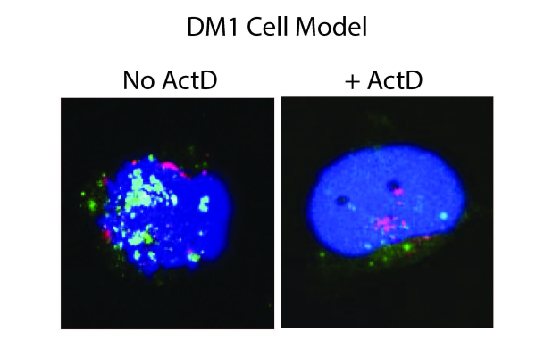 Cancer drug shows promise in reducing toxic genetic material in myotonic dystrophy